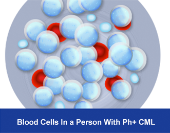 Image shows a representation of what Philadelphia positive chronic myeloid leukemia blood cells look like in a microscopic view.